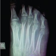 Solitary Presentation but Multiple Etiologies in Foot: A Case Series