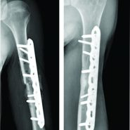 Closed Humeral Fracture Complicated with Acute Hematogenous Osteomyelitis: A Case Report