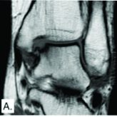 Histological and Gross Evaluation through Second-Look Arthroscopy of Osteochondral Lesions of the Talus after Failed Treatment with Particulated Juvenile Cartilage: A Case Series