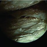 Arthroscopic Management of Intra-articular Tophaceous Gout of the Knee: A Case Report and Review of the Literature