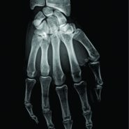 Simultaneous Metacarpophalangeal Dislocation and Carpometacarpal Fracture-Dislocation of the Ring Finger: A Case Report