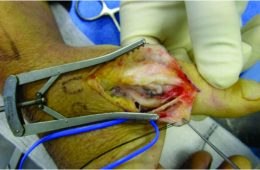 Bilateral Simultaneous Traumatic Thumb Injuries – Extensor Pollicis Longus Rupture On One Side And Ulnar Collateral Ligament On The Other