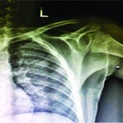 An Unusual Presentation of Osteochondroma on the Dorsal Surface of the Scapula: A Review of Two Patients