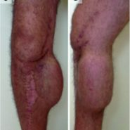 Soft-Tissue Expansion beforeTotal Knee Arthroplasty:A Report of Two Cases