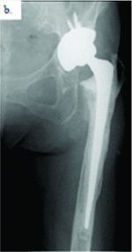 Progressive Osteolysis with Hematoma Following Revision Total Hip Arthroplasty using Hydroxyapatite Mesh: A Case Report