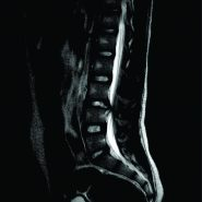Limbus Vertebral Fracture Presenting as Cauda Equina Syndrome Masquerading An Acute Disc Prolapse – A Rare Case Report and Review of Literature