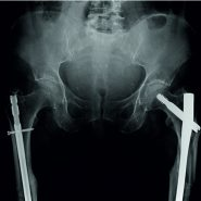 Peri-implant Atypical Fractures Associated with Bisphosphonates: Should this Clinical Entity be Included in the Definition of Atypical Femoral Fracture? Case Report