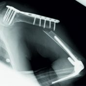 Treatment of Periprosthetic Humeral Shaft Fracture after Total Elbow Arthroplasty in an Osteoporotic Patient, using the Ilizarov External Ring Fixator: A Case Report