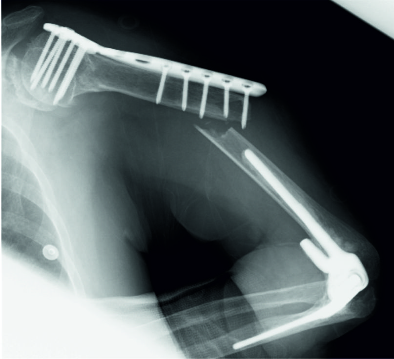 treatment of periprosthetic humeral shaft fracture after