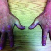 Supercharge End-to-Side Anterior Interosseous Nerve to Ulnar Motor Nerve Transfer for Severe Ulnar Neuropathy: Two Cases Suggesting Recovery Secondary to Nerve Transfer