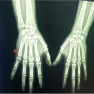 Pure Isolated Dorsal Hamatometacarpal Dislocation in a Rider: A Case Report and Review of Literature