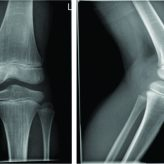 Avulsion Fracture of the Anterior Intercondylar Eminence in an Eight-year-old Child: ACase Report