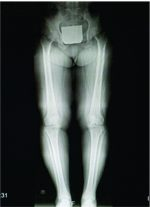 Acute Cholecystitis Following Total Knee Replacement: A Case Report and Literature Review