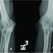 Bilateral Spontaneous Bony Ankylosis of the Elbow Following Burn: A Case Report and Review of the Literature