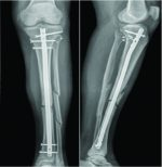 Proximal Tibiofibular Dislocation Repaired with Syndesmotic Suture Buttons: A Case Report