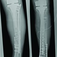 Periprosthetic Tibial Fracture with Nonunion and Ascending Prosthetic Joint Infection: A Case Report of an Individual Treatment Strategy