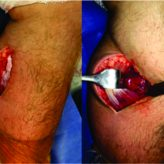 Infected Baker's Cyst: A New Classification, Diagnosis and Treatment Recommendations