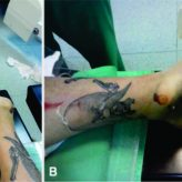 Open Treatment of Closed Talus Dislocation without Fracture: A Case Report and Literature Review