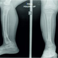 Compression Osteosynthesis – An Effective Solution for Hypertrophic Nonunion of Tibia in Children