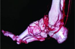 Septic True Aneurysm of the Posterior Tibial Artery Diagnosed after Anterior Arthroscopic Debridement of a Septic Ankle following Infective Endocarditis: A Case Report