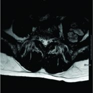 Delayed Presentation of a Symptomatic Psoas Hematoma Following Lumbar Vertebral Kyphoplasty for Myeloma: A Case Report