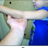 Intra-articular Monteggia Fracture: A Case Study of Using the Center of Rotational Angulation to Improve a Functional Outcome