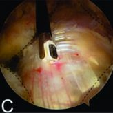 Endoscopic Treatment of Greater Trochanteric Pain Syndrome –  A Case Series of 11 Patients