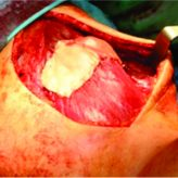 Complete Intrasubstance Long Head Biceps Brachii Rupture with Successful Repair: A Case Report