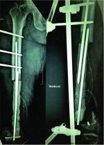 Custom Mega Prosthesis Knee: A Panacea for Intricate Trauma of Distal Femur with Bone Loss