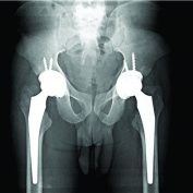 Ayurvedic Medications as Accelerating Cause of Atraumatic Bilateral Femur Neck Fracture in a Young Indian Male with Kidney Disease: A Unique Case Report