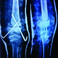 Slipped Distal Femoral Epiphysis in Congenital Insensitivity to Pain