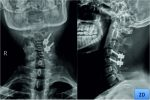Osteoid Osteoma of Cervical Spine: A Case Report and Review of Literature