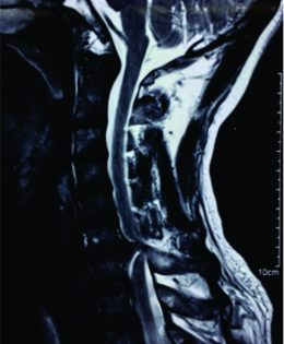 Spontaneous Cervical Intradural Disc Herniation Presenting withBrown-Sequard Syndrome at C6–C7 level
