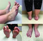 Congenital Unilateral Hypertrophy of the Foot Intrinsics: A Rare Case and Review of Literature
