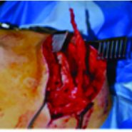 Transfer of the Lower Trapezius as a Surgical Treatment for Combined Injuries to the Suprascapular and Axillary Nerves: A Case Report