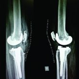 Bilateral Spontaneous Midsubstance Patellar Tendon Rupture after Bilateral Total Knee Arthroplasty