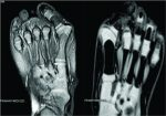 A Case Report of Congenital Hallux Valgus from an Incomplete Preaxial Polydactyly without a Supernumerary Digit
