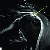 Arthroscopic Repair of an Isolated Infraspinatus Tear in a Contact Athlete: A Case Report