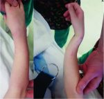 Refracture of the Pediatric Forearm with Intramedullary Nails in situ
