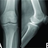 Intraosseous Leiomyoma of the Tibia. A Case Report