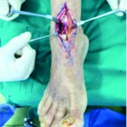 Allograft Reconstruction of Spontaneous Tibialis Anterior Tendon Rupture in a Diabetic Patient