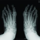 Long Term Result of Weil Osteotomy and Callotasis for Bilateral Brachymetatarsia: A Case Report