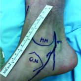 The Intraneural Ganglion Cyst of the Tibial Nerve: A Case Report and Review of Literature