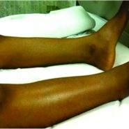 The Popliteal Vein Thrombosis in A Pediatric Patient: A Case Report.