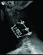 Delayed Diagnosis and Management of Traumatic Cervical Spine Subluxation