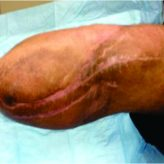 Salvage of a Below Knee Amputation Utilizing Rotationplasty Principles in a Patient with Chronic Tibial Osteomyelitis