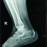 Bimalleolar Fracture: A Unique Case of Complication of Complex Regional Pain Syndrome of Lower Extremity After Prolonged Undue Immobilisation