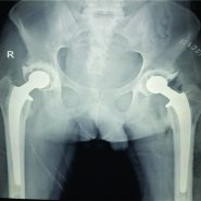 SubcapitalNeck of Femur Fracture in a Case of Osteonecrosis of Femoral Head – Rare Presentation