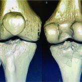 Calf Augmentation Implant Disruption Following a Tibial Plateau Fracture Fixation: An Extremely Rare Complication
