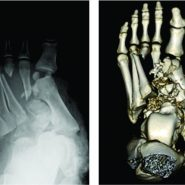 Limb Salvage for a Mangled Foot: A Case Report